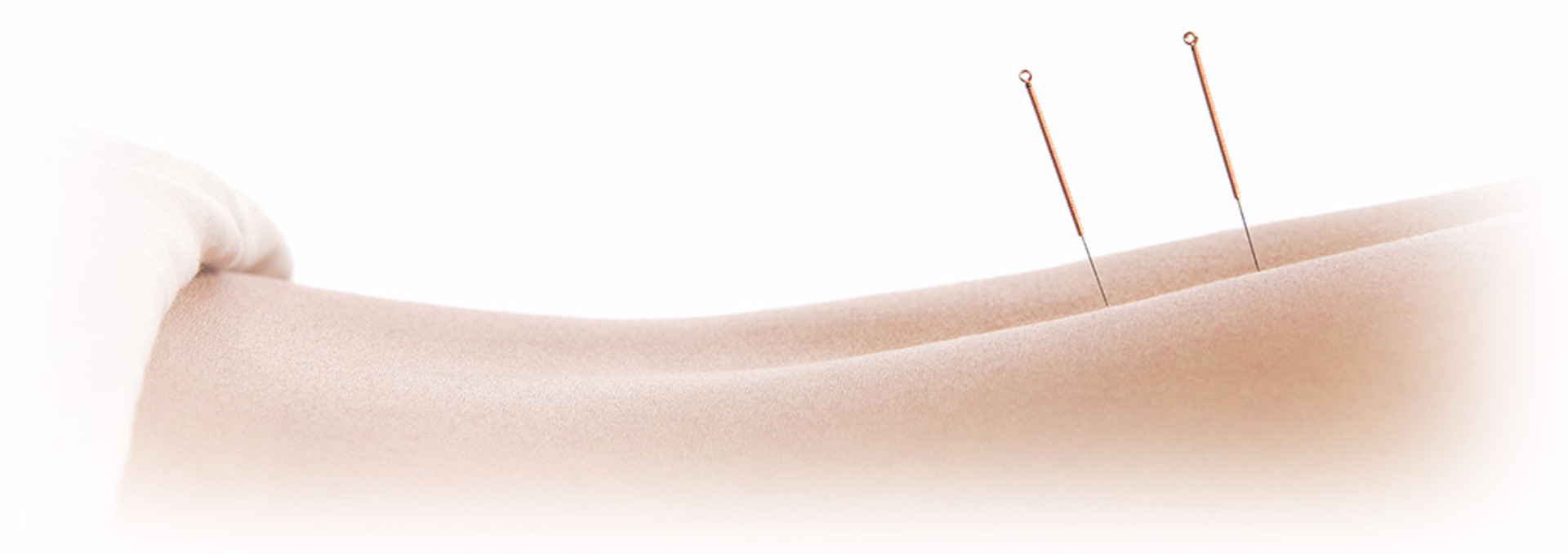 acupuncture calabasas and sherman oaks